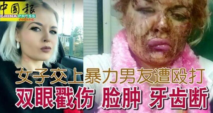 悲!女子交上暴力男友遭毆打雙眼戳傷臉腫牙齒斷!身心靈遭折磨傷害!