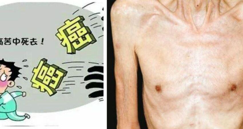 癌症都是靜悄悄的,但是出現以下四個標志,提示身體內有癌症