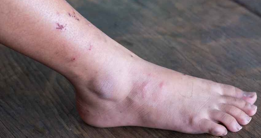 腳上出現4種特徵,警惕肝功能變差,儘快檢查肝臟