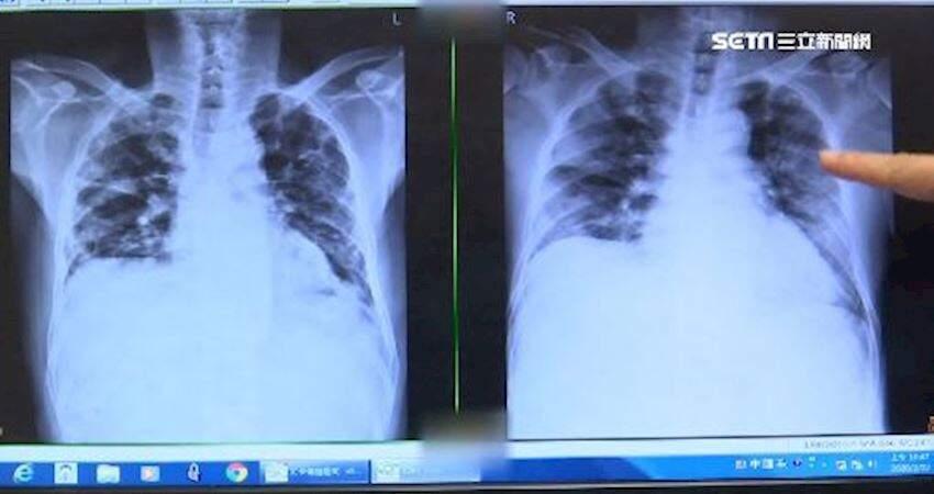 武漢肺炎後遺症?首例痊癒肺纖維化