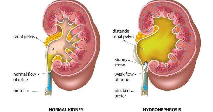 關於腎臟的7個飲食好習慣,多了解一分,腎臟健康保障多一分