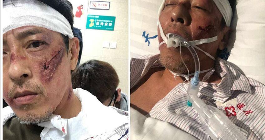 港星呂頌賢驚曝「醫院急救「照片,嚇壞網友