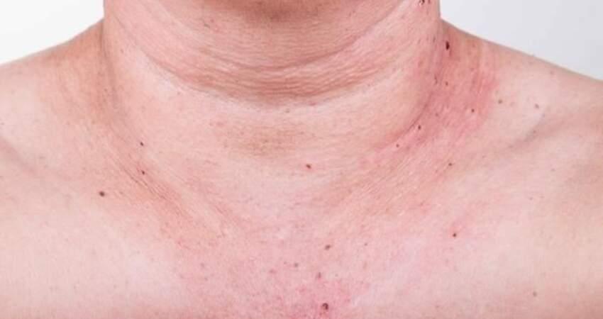 肝臟硬化,皮膚告知?提醒:皮膚出現這種痣,暗示肝硬化即將到來
