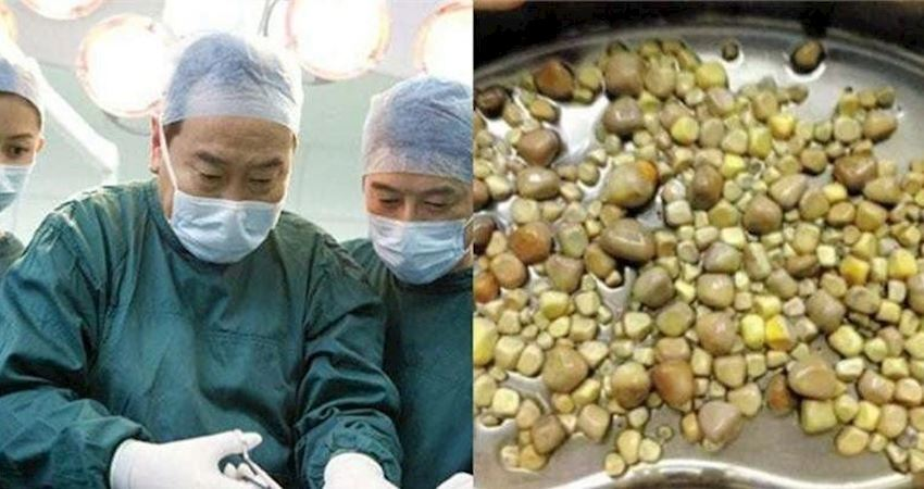 醫生從男子體內夾出「420顆腎結石」震驚全國!醫生夾到手軟:因為他太愛吃這個...