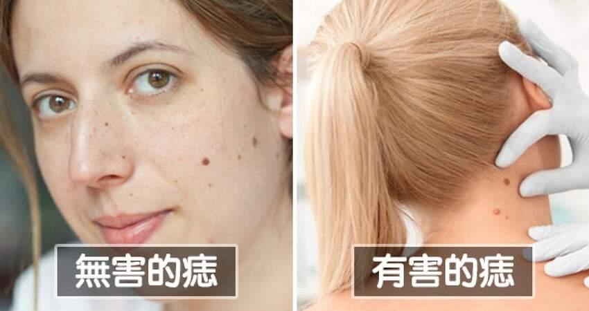 低敏感化妝品根本不萬用 14個「越做皮膚越糟」的美容迷思