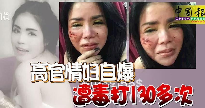 高官情婦自爆,遭毒打130多次!警察介入辦理申訴引網友吐槽
