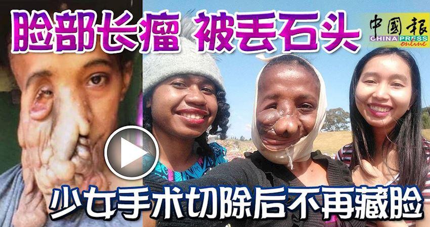 臉部長瘤被丟石頭少女手術切除後不再藏臉