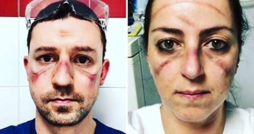 真的辛苦了! 防護裝備「穿整天不能脫」 摘下口罩「滿臉壓痕」曝光:感謝第一線醫護!