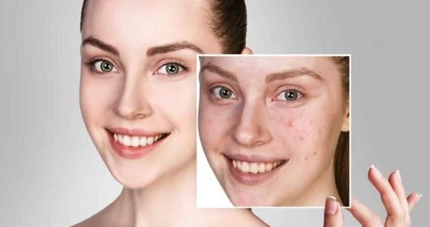去黑頭收毛孔,做好簡單三步,你也擁有磨皮的好肌膚