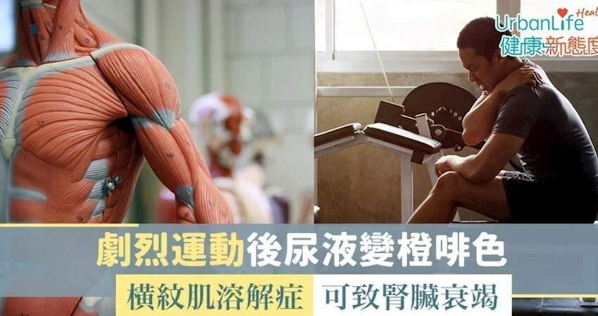 【過量運動】劇烈運動後尿液變橙啡色 橫紋肌溶解症可致腎臟衰竭