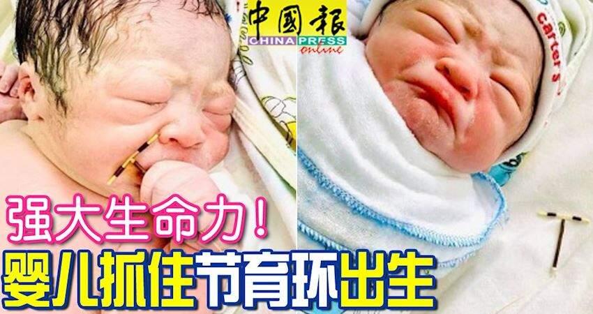 強大生命力!嬰兒抓住節育環出生