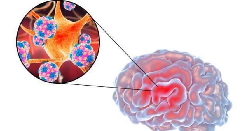 如何預防腦梗突襲?忠告:遠離這4種食物,腦梗很難上門