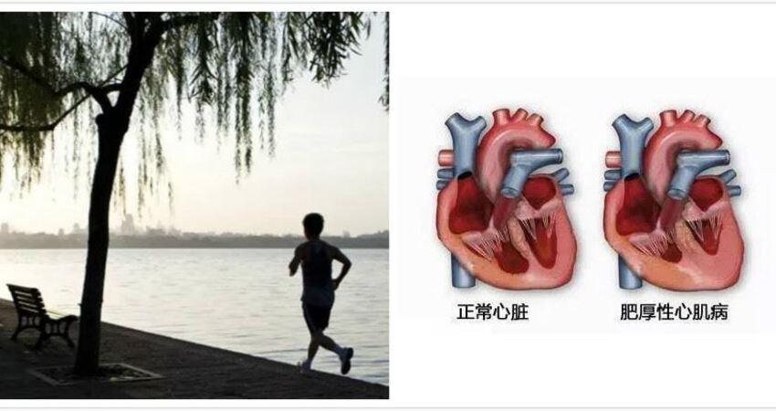 馬拉松跑者突發心髒病醫生:超量了!跑步要適度