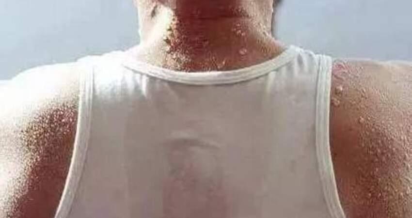 夏天大量出汗,是脂肪在燃燒嗎?3種錯誤方式,體重極易反彈回來