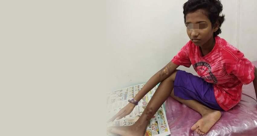 【馬來西亞】10歲女童疑被母親虐待!手腳灼傷、皮開肉綻...