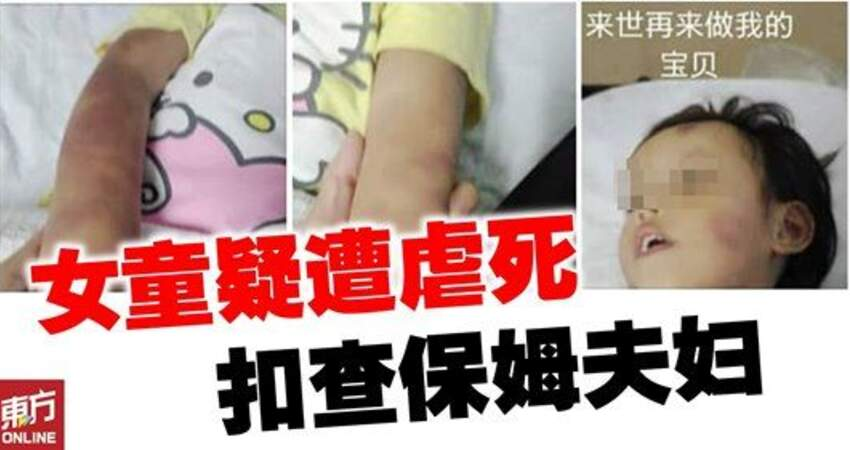 【馬來西亞】小兄妹疑遭保姆夫婦虐待!3歲妹慘死、6歲兄住院!
