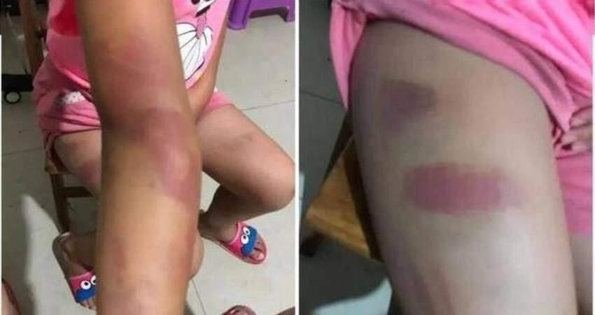 一國小老師體罰10歲女童,還叫4學生輪流毆打,如今僅被暫停教學工作