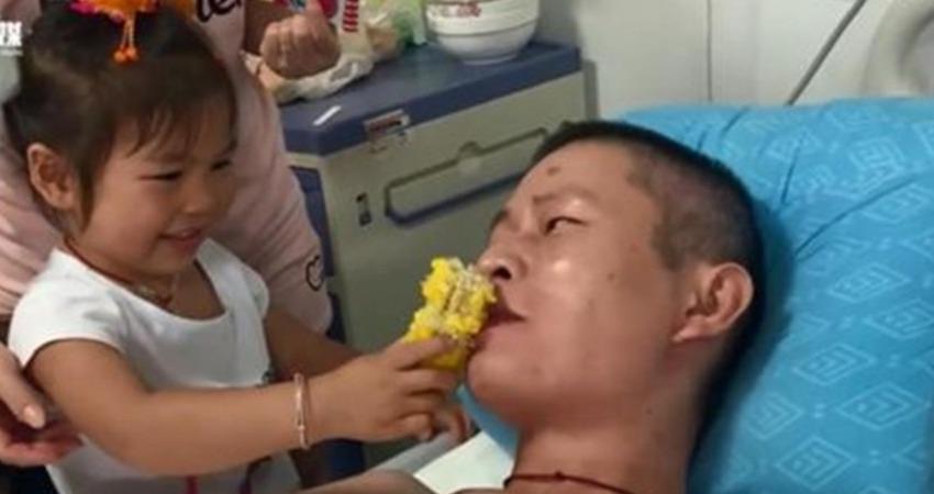 誤觸高壓電「四肢成黑炭」!妻子不離不棄「陪伴16次手術」 3歲女兒一句話讓他淚流不止