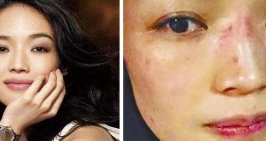 舒淇過敏照片曝光嚇壞網友,為控制過敏十幾天不洗臉
