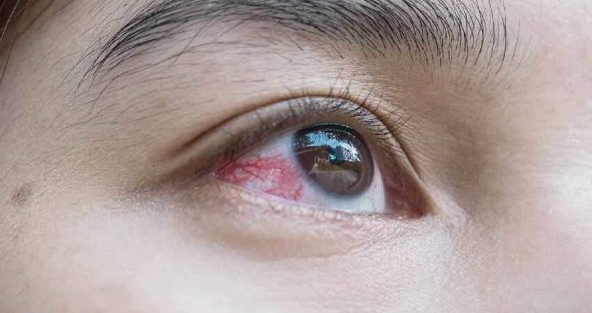 眼睛裡總是有紅血絲?或不是休息不夠,最後一點,男女都易錯