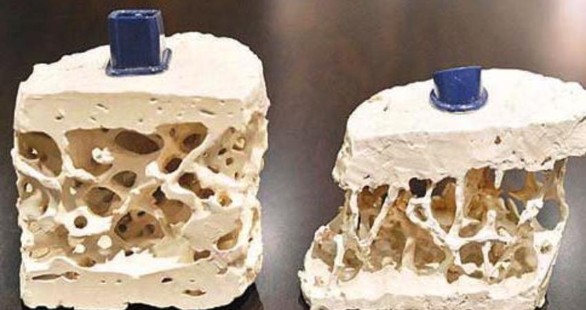 女性50歲後容易骨質疏鬆,營養師說:少吃3種傷鈣食物,常做1件事