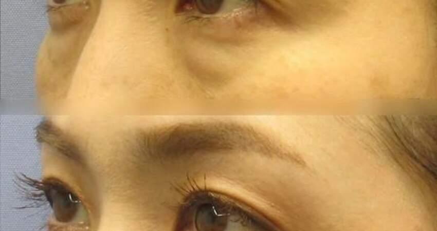 關於「祛眼袋手術」,醫生說出了5個真相