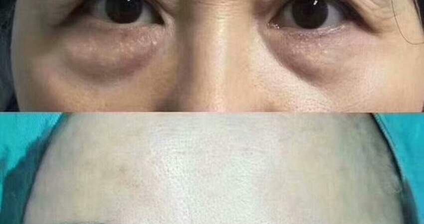提眉手術給眼周帶來多大變化,50歲姐姐來說說自己的「心路歷程」