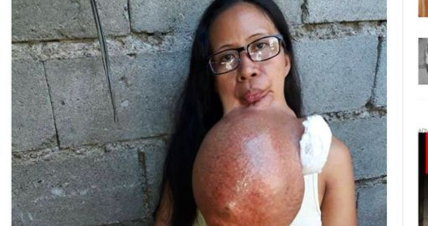 下顎痛別輕忽!婦下巴長比西瓜大巨瘤