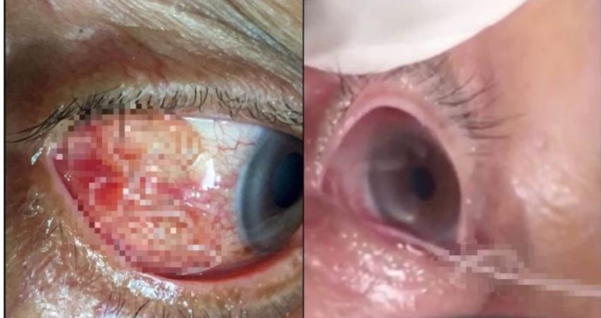 悚!阿公眼睛又癢又痛 就醫竟抽出「15公分寄生蟲」